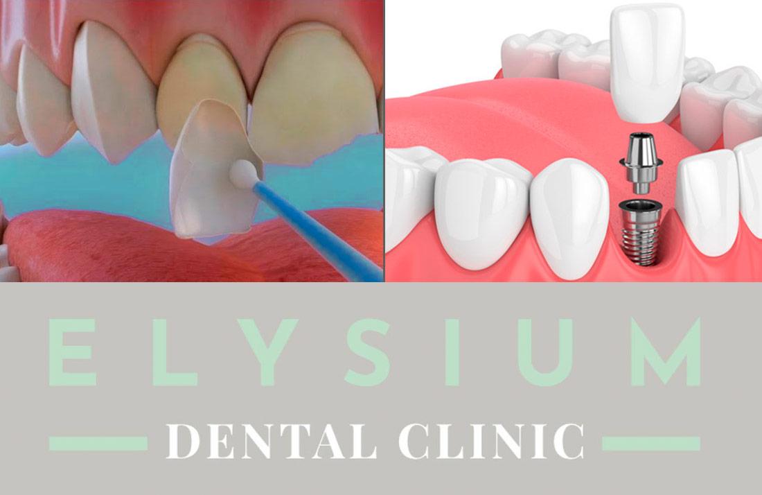 Carillas o implanes dentales