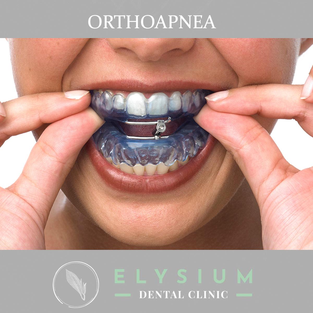 Orthoapnea en madrid