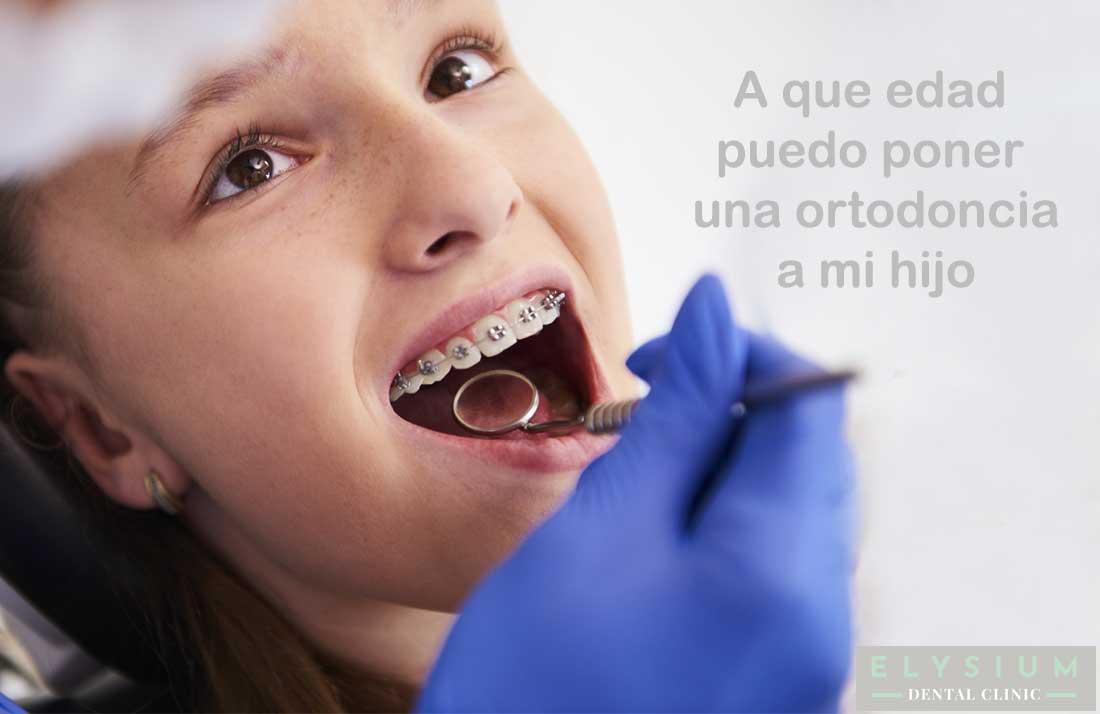A que edad puedo poner una ortodoncia a mi hijo